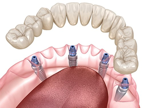 A digital image of a customized lower denture being secured over All-On-4 dental implants