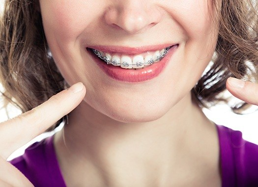 Woman with braces pointing to smile