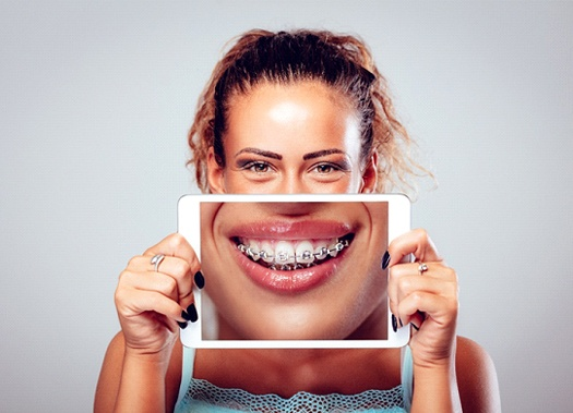 A young woman holding a tablet in front of her face and smiling to show off her braces in Uptown New Orleans