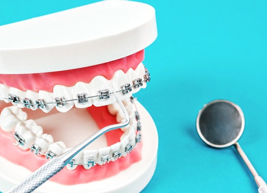 A mouth mold with braces and dental instruments