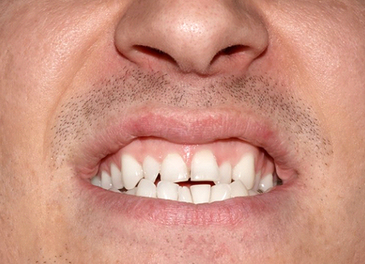 man with crowded and crooked teeth before traditional braces