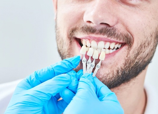 man getting fitted for veneers