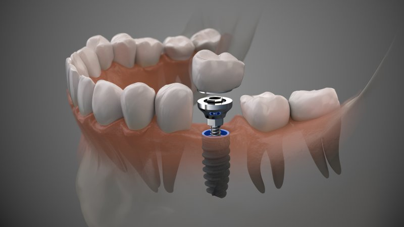 a digital image of a single tooth dental implant in Uptown New Orleans after a tooth extraction