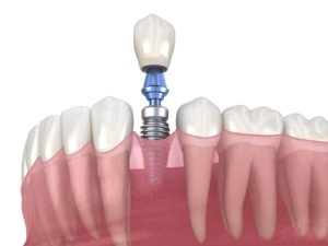 Dental implant terms you should know in New Orleans